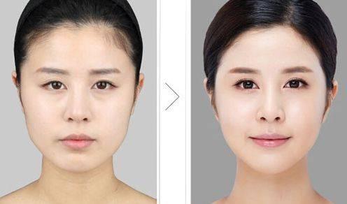 做V-line瓜子脸手术治疗效果怎么样?效果保持时间多久?