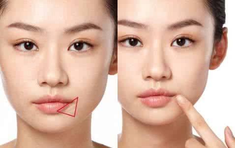 做嘴角开大治疗效果怎么样?效果保持时间多久?