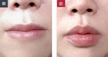 做爱贝芙丰唇治疗效果怎么样?效果保持时间多久?