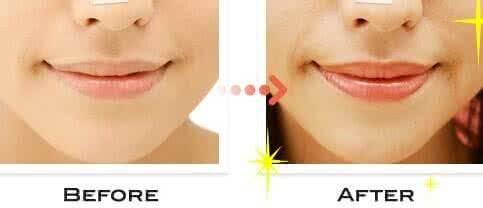 做丰唇珠治疗效果怎么样?效果保持时间多久?