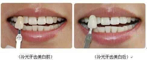 做牙齿冷光美白治疗效果怎么样?效果保持时间多久?