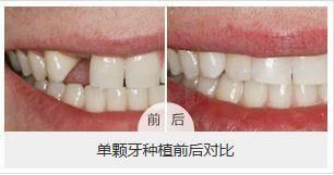 做单颗牙种植治疗效果怎么样?效果保持时间多久?