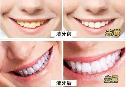 做喷砂洁牙治疗效果怎么样?效果保持时间多久?