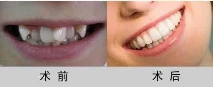 做牙齿拥挤治疗效果怎么样?效果保持时间多久?