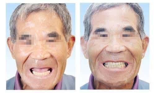 做种植牙治疗效果怎么样?效果保持时间多久?