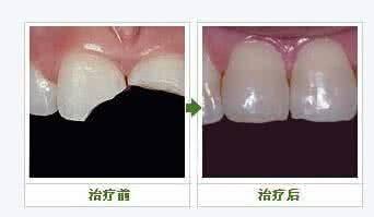 做牙齿缺损修复治疗效果怎么样?效果保持时间多久?