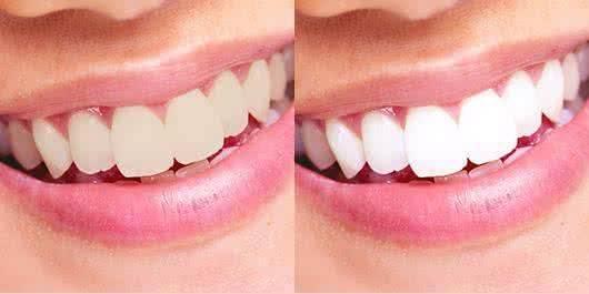 做牙齿美白治疗效果怎么样?效果保持时间多久?