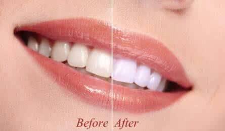 做咖啡牙美白治疗效果怎么样?效果保持时间多久?