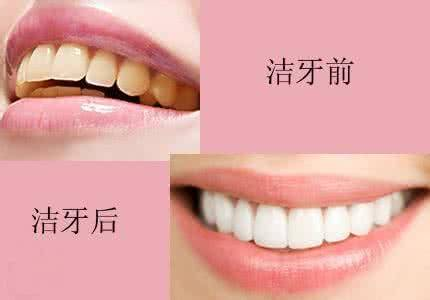 做超声波洁牙治疗效果怎么样?效果保持时间多久?