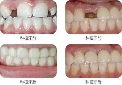 做前牙种植治疗效果怎么样?效果保持时间多久?