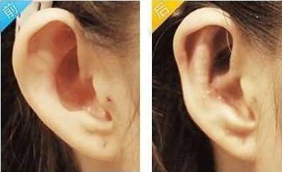 做耳轮缺损修复治疗效果怎么样?效果保持时间多久?