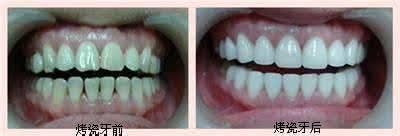 做烤瓷牙种植治疗效果怎么样?效果保持时间多久?