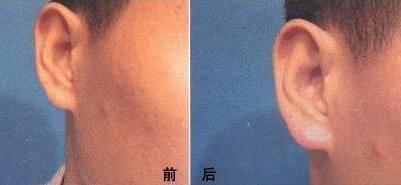 做自体脂肪丰耳垂治疗效果怎么样?效果保持时间多久?