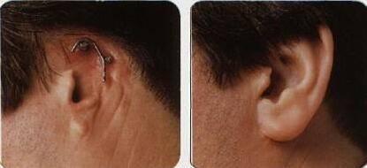 做外耳再造治疗效果怎么样?效果保持时间多久?
