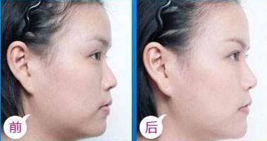 做丰耳垂失败修复治疗效果怎么样?效果保持时间多久?
