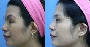 做杯状耳矫正治疗效果怎么样?效果保持时间多久?
