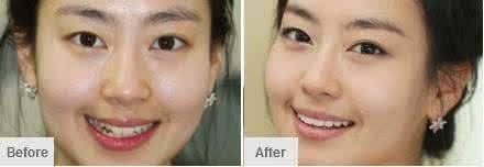 做全瓷牙种植治疗效果怎么样?效果保持时间多久?