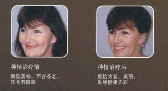 做牙齿种植治疗效果怎么样?效果保持时间多久?