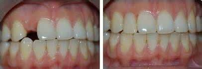 做烤瓷牙补牙治疗效果怎么样?效果保持时间多久?