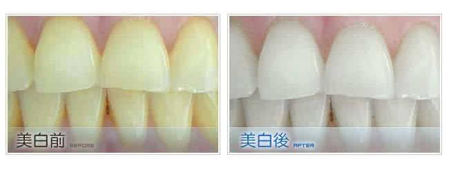 做牙齿抛光治疗效果怎么样?效果保持时间多久?