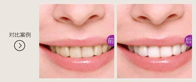 做牙齿漂白治疗效果怎么样?效果保持时间多久?