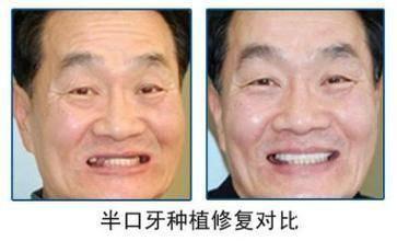 做半口牙种植治疗效果怎么样?效果保持时间多久?