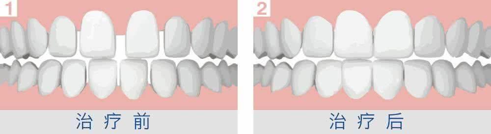 做牙齿稀疏治疗效果怎么样?效果保持时间多久?