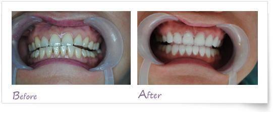 做烟渍牙美白治疗效果怎么样?效果保持时间多久?