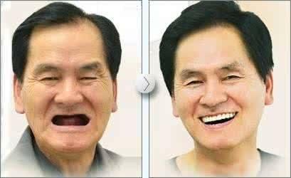 做全口牙种植治疗效果怎么样?效果保持时间多久?