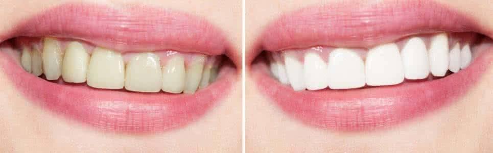 做牙齿瓷贴面治疗效果怎么样?效果保持时间多久?