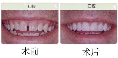 做烤瓷牙治疗效果怎么样?效果保持时间多久?
