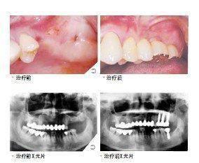 做多颗牙种植治疗效果怎么样?效果保持时间多久?