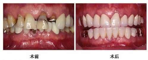 做镶牙治疗效果怎么样?效果保持时间多久?