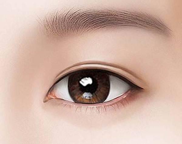 广州做埋线双眼皮价格是多少?