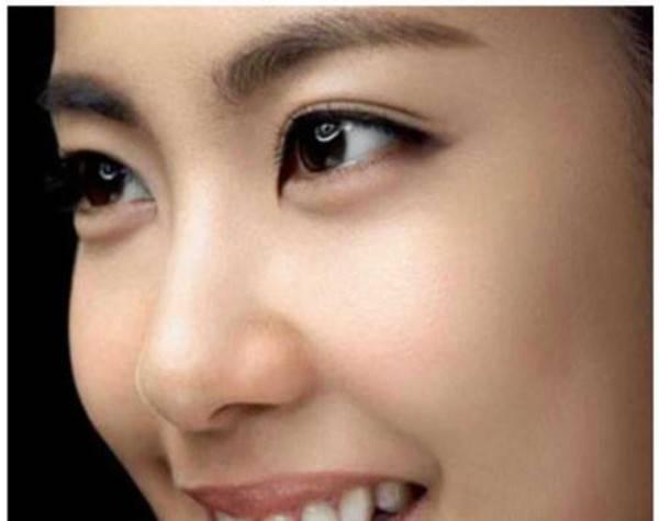 深圳做切开法双眼皮价格是多少?