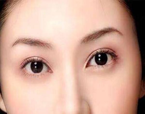 深圳做双眼皮修复价格是多少?