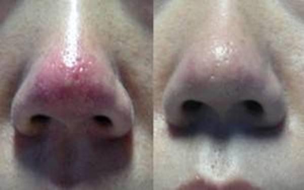 做冷冻法治疗酒糟鼻手术麻醉方式是什么?