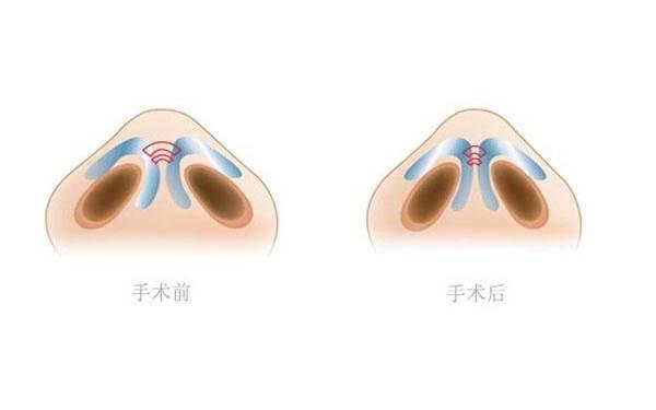 做蒜头鼻治疗手术麻醉方式是什么?