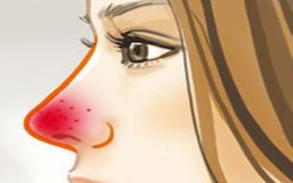 做酒糟鼻治疗需要多少钱?