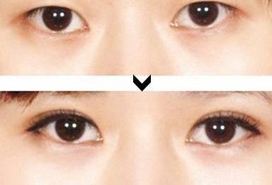 微创双眼皮做完要多久时间?