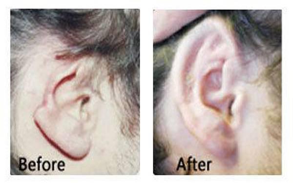 自体脂肪丰耳垂手术时间需要多久?