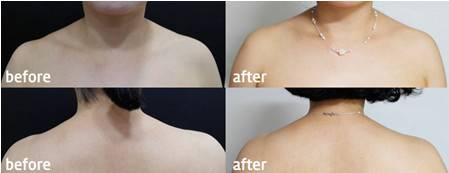 做肉毒素瘦肩膀手术时间是多久?