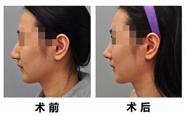 做软骨整形矫正短鼻手术麻醉方式是什么?