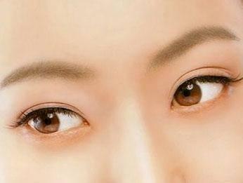 做韩式双眼皮手术大概需要多少钱?