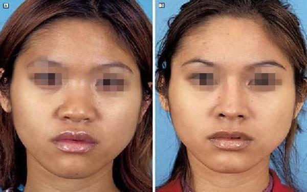 做鼻翼减薄手术时间是多久?
