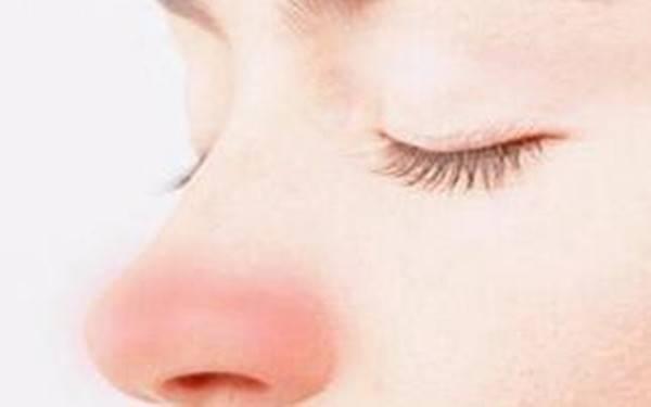 做激光治疗酒糟鼻手术时间是多久?