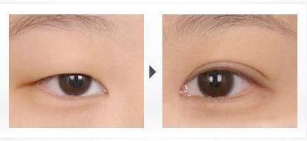 上瞼提肌矯正上瞼下垂手術缺點有哪些?