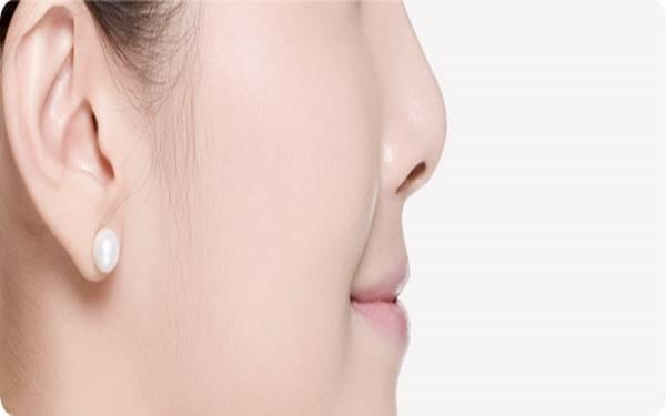 做去鼻唇沟失败修复注意事项是什么?