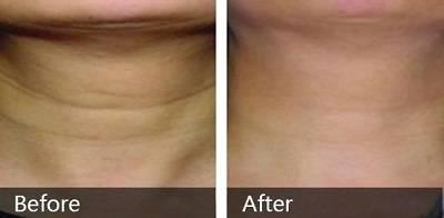自体脂肪除颈纹手术效果好不好?