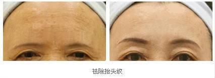 激光去除抬头纹手术术后护理?